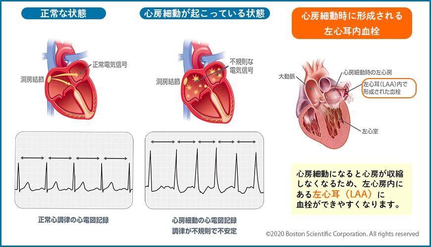 心房細動の心電図