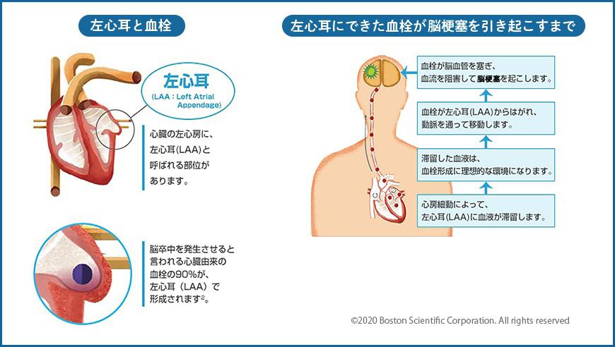 左心耳と血栓